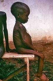 Desnutrición proteica en los niños