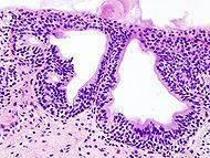 Causas de infección urinaria