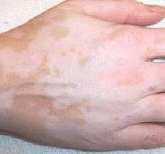 Qué cura es buena para el vitiligo