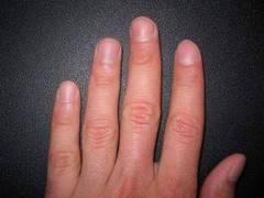 Para blanquear las uñas