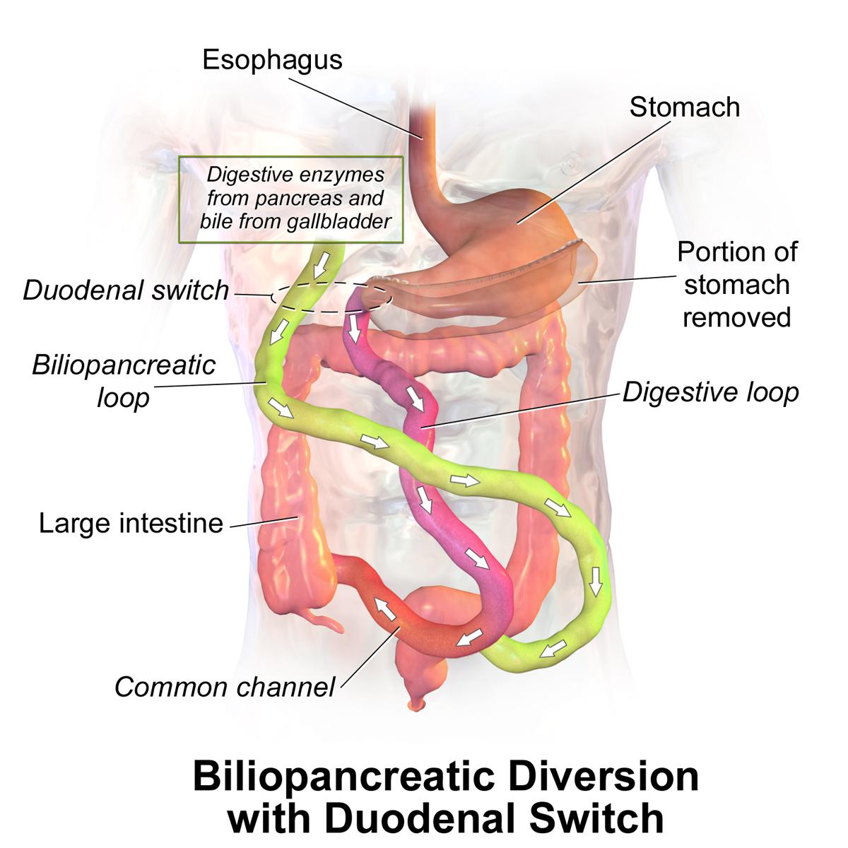 Dolor en la parte derecha de la barriga: causas y remedios caseros ...