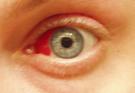 ojos enrojecidos
