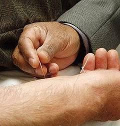 Técnicas de acupuntura