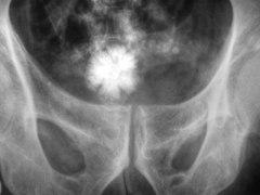 Arena en el riñón