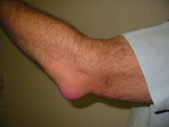 Inflamación articular