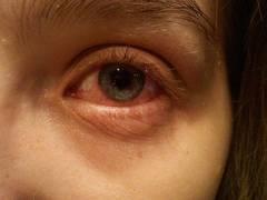 inflamacion de ojos
