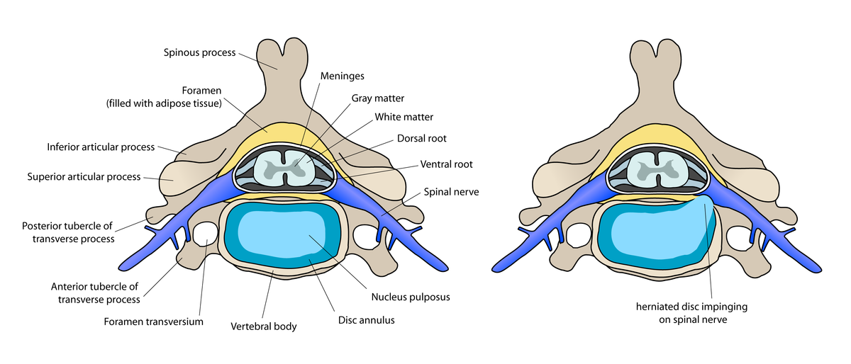 La crisis de la columna vertebral el plazo del tratamiento el tratamiento