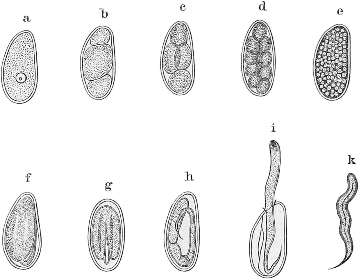 Invaginacin intestinal en adultos - medigraphiccom