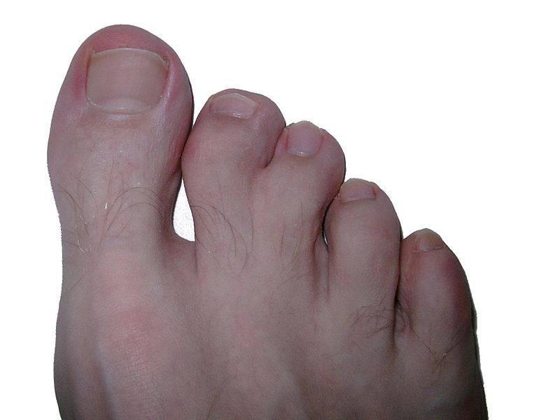 El tratamiento longitudinal borozdok de las uñas