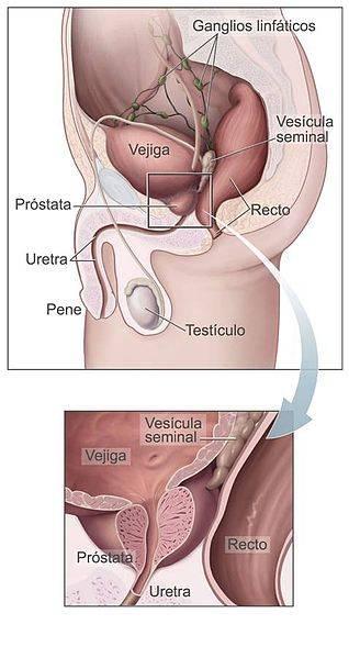 se puede tener ereccion sin prostata