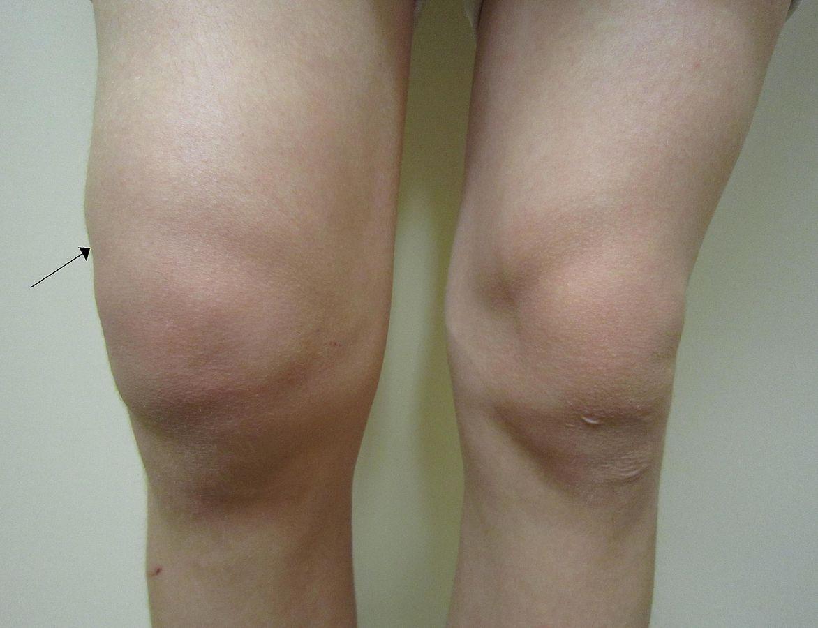 Por qué duelen las rodillas? Causas más comunes - Innatia.com