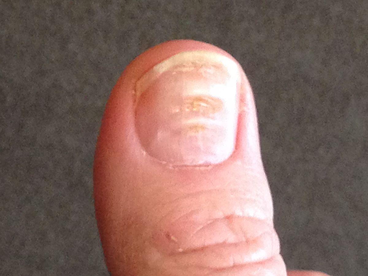 Cómo prevenir y eliminar las estrias en las uñas - Innatia.com